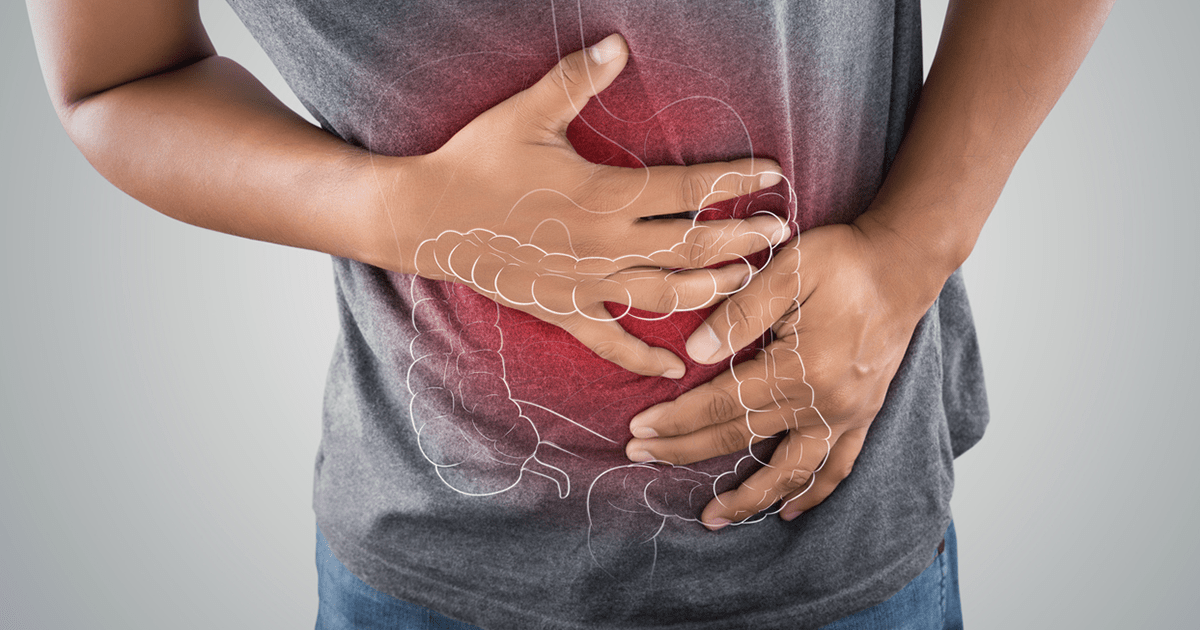 CBD And Irritable Bowel Syndrome